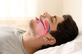 Man sleeping with airway animation on profile