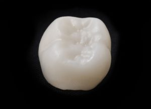 Your dentist in Buckhead uses CEREC technology for same-day restorations.